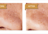 Deep Pores Cleansing w/extraction and Microdermabrasion