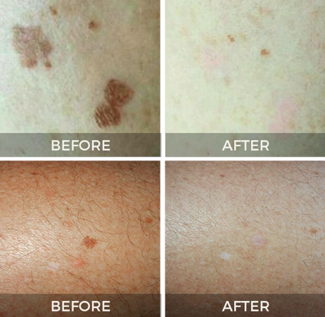 brown spot removal skin tag removal commack Long Island