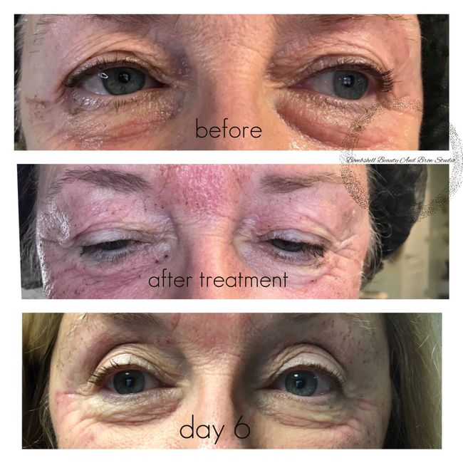 Fibroblast Plasma skin tightening Eyelid lift & under eye bags with crow's feet treatment.