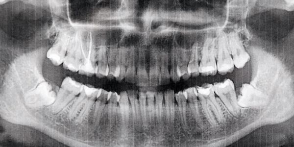 PANORAMIC X-RAY, ORAL SURGEON