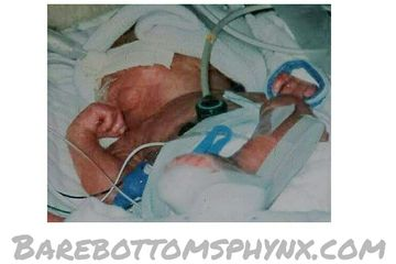 Our son came severely early 26 weeks of gestation and has chronic lung disease and liver disease