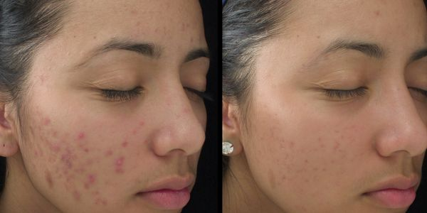 Chemical Peel before and after results