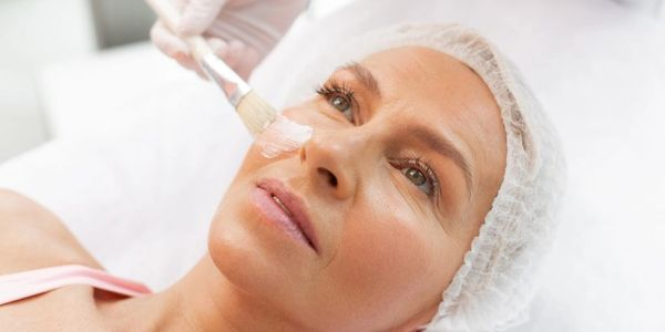 Chemical peel being applied to the face