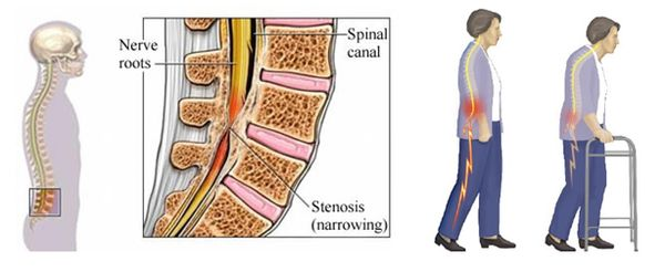 spine, herniation, bulging disc, stenosis, aging, car accident, low back pain. decompression, decomp