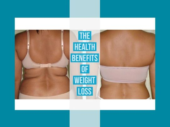 The health benefits of Hcg weight loss