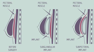 Submuscular and Subglandular Breast Implants