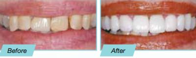 Dental Veneers before and after