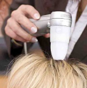 Hair and scalp analysis for hair loss ans scalp issues.