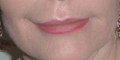 MCA removes wrinkles around the lips