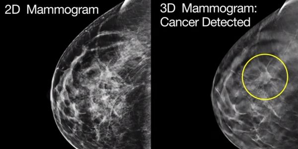 This picture demonstrated the visibility of cancers and tumors.