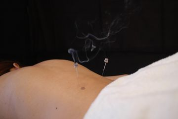Acupuncture treatment, Medicine of Changes, Andre Yershov Acupuncture, NYC