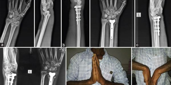 At Amrutha Orthopedic Clinic Vijayanagar Bangalore we treat fracture of wrist bones By senior orthopedic surgeon Dr Venu Madhav