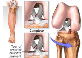 Amrutha Orthopedic & ACL Clinic Vijayanagar Bangalore  is the best hospital for Arthroscopic ACL reconstruction by senior Arthroscopic surgeon Dr Venu Madhav