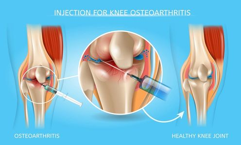 Amrutha Orthopedic & Knee Clinic Vijayanagar Bangalore  is the best hospital for treatment of knee pain without surgery by Knee Injections, Stem cell treatment, knee shots, sodium hyaluronate injections By senior knee Specialist Dr Venu Madhav