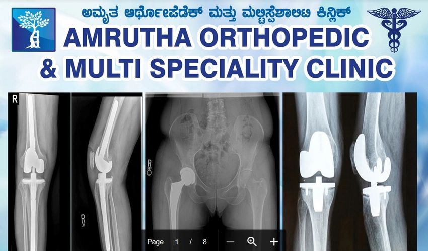 Senior Orhtopaedic doctor in Orthopaedic Clinic who is also Spine Surgeon & Knee replacement surgeon