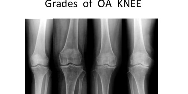 At Amrutha Orthopedic Clinic Vijayanagar Bangalore best treatment for knee pain is provided By senior knee specialist surgeon Dr Venu Madhav