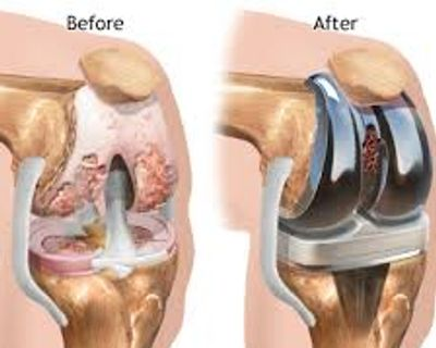 Amrutha Orthopedic & Knee Replacement Clinic Vijayanagar Bangalore  is the best hospital for total knee replacement By Senior knee replacement surgeon Dr Venu Madhav