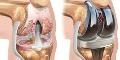 Amrutha knee replacement clinic in Bengaluru is the best knee replacement clinic in Bengaluru