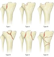 At Amrutha Orthopedic Clinic rajaji nagar Bangalore we treat all six types of proximal tibia fracture By senior orthopedic surgeon Dr Venu Madhav