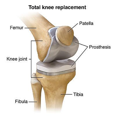 Total Knee Replacement Implants. Amrutha Orthopedic & Knee Replacement Clinic Vijayanagar Bangalore  is the best hospital for total knee replacement By Senior knee replacement surgeon Dr Venu Madhav