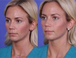Cheek augmentation before and after