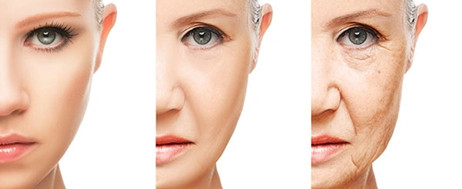 Microneedling is a treatment whereby small needles are pushed over your face to build collagen.
