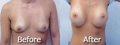 One of our happy breast augmentation patients! Atlanta, GA.