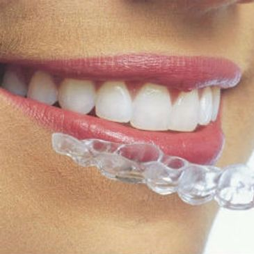metal free holistic orthodontic dental healthy less time comfortable concierge  integrative