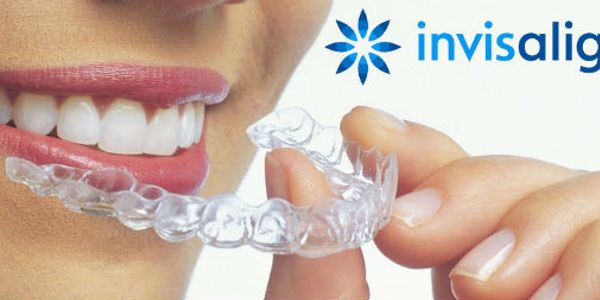 metal free holistic orthodontic dental healthy less time comfort healthy fast convenient low cost