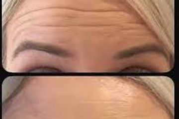 before and after botox treatment to get rid of forehead lines and wrinkles.
