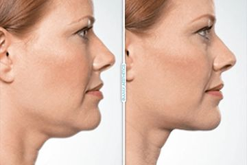 eliminate the double chin permanently with kybella