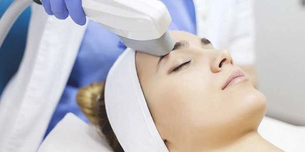 IPL, laser genesis, fraxel, facial, photofacial, cutera, elos, medical spa