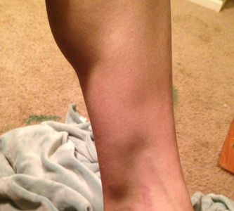 Felicia's leg  with Compartment Syndrome 'bulge' 2 days before surgery.