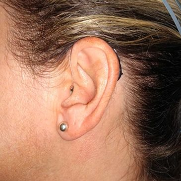 Hearing Aid on the ear.  Low profile and hardly noticeable!