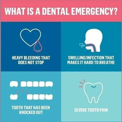 Coronavirus: What is a Dental Emergency?