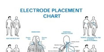 Electrode Placement Chart for using the Wellness Pro Plus