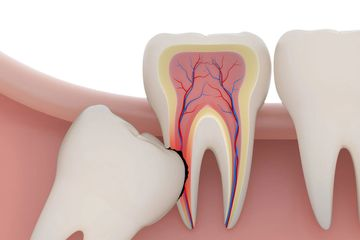 Wisdom Tooth | Impacted | Removal | Extraction | West Hartford | New Britain | Best | Dentist