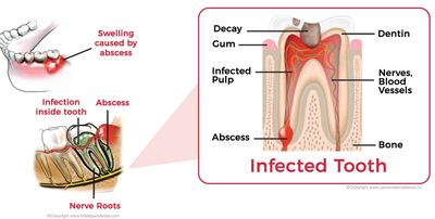 Untreated toothache can lead to life threatening abscess and severe pain due to the infected tooth.
