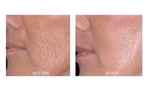Pure Radiance Natural Skin Care before and after results of product use