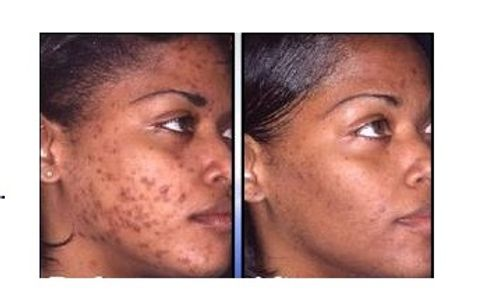 Pure Radiance Natural Skin Care before and after Retinol use results