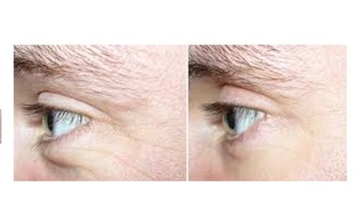 Pure Radiance Natural Skin Care before and after results of eye wrinkles