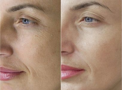 microneedling shrinks pores and smoothes skin, fine line and wrinkles.