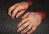 Severed Hands Cast In Silicone