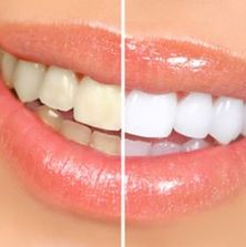 Teeth Whitening up to 8 shades lighter