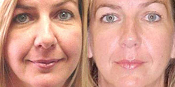 Painless Micro-current Facelift