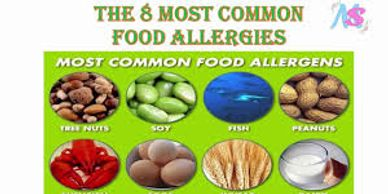 The most common food allergies are peanut, egg, shellfish, tree nuts, soy, wheat, milk, and fish