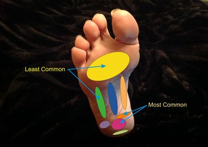 Common locations of pain associated with plantar fasciitis.