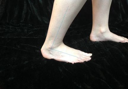 Limited ankle flexibility is often associated with plantar fasciitis.