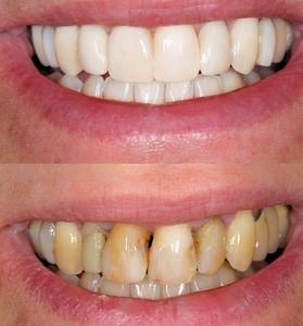 Before and after using dental veneers and crowns