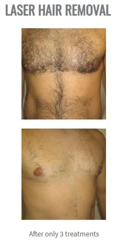 laser hair removal before and after picture